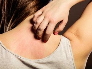 Les symptômes et les traitements des allergies cutanées