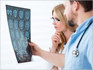 Le dépistage d'un anévrisme cérébral non rompu