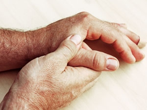 Les symptômes de l'arthrite