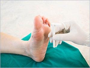 Diabete douleur pied