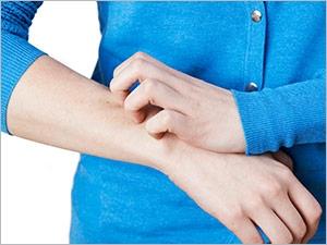 Les symptômes et les traitements de la gale