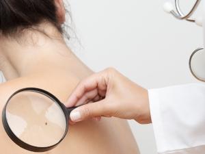 Quand aller chez le dermatologue pour faire examiner vos grains de beauté ?