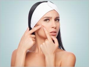 Quels sont les remèdes homéopathiques pour traiter l'acné ?