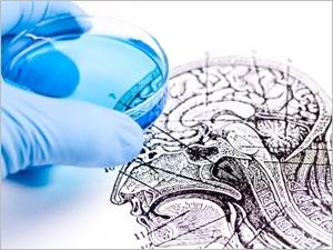 Une piste pour stopper l'évolution de la maladie d'Alzheimer