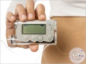 Pompes à insuline en cas de diabète : pour qui ?