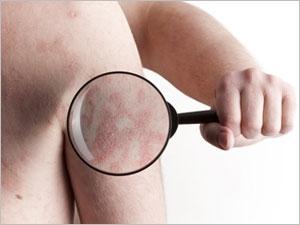 Comment traiter le psoriasis ?