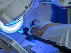 Radiothérapie du sein