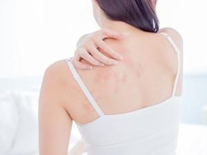 Soleil et eczema : comment le prévenir en été ?