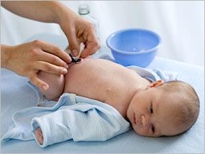 Comment soigner le cordon ombilical de bébé ?