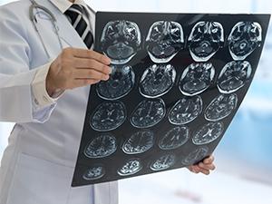 Comment traiter la tumeur cérébrale