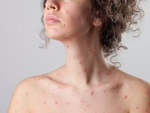 Les risques de la varicelle chez l'adulte
