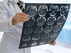Rubrique cancer du cerveau
