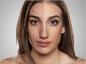Quiz sur l'acné