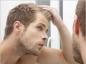 Calvitie de l'homme : la chute des cheveux est-elle une fatalité ?