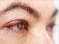 Les symptômes et les traitements du chalazion