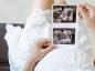 Les évolutions du foetus durant la grossesse