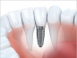 Zoom sur l'implant dentaire