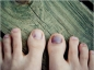 Les bobos des pieds du sportif
