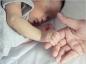 Les symptômes et les traitements de la neurofibromatose