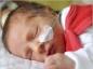 Bébé prématuré : quels risques ?