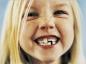 Les dents de lait et les dents définitives