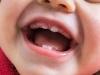L'homéopathie pour apaiser la poussée dentaire de bébé